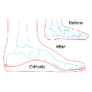 Insoles for Work Boots